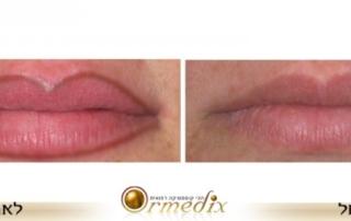 לפני ואחרי איפור קבוע בשפתיים במראה טבעי